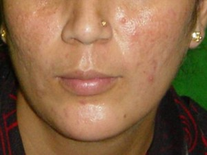 skin resurfacing after treatment