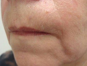 skin resurfacing before treatment