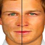 laser treatments for men