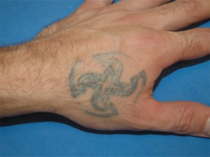 before laser tattoo treatment on hand