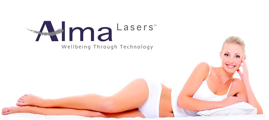 alma laser therapy