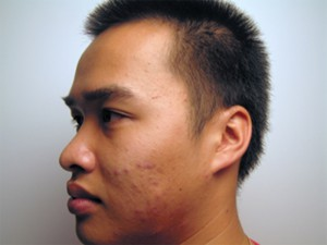 Gentleman's face before Murad blemish treatment