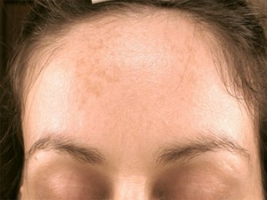 Impact beauty treatment before