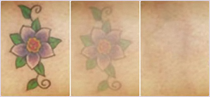 laser-tattoo-removal