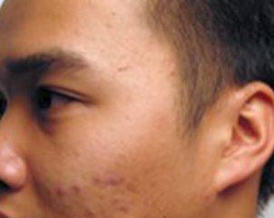 murad facial