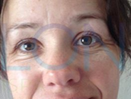 non-surgical-facelift-after-1